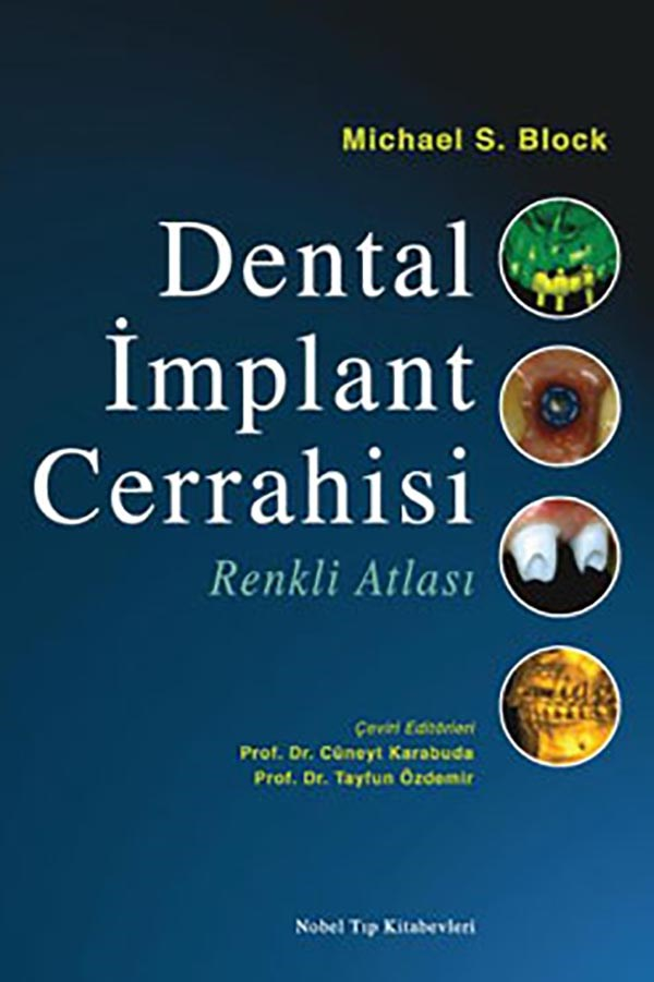 Dental-Implant-Cerrahisi-Renkli-Atlas